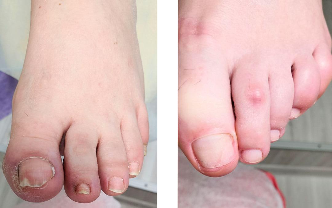 Результат протезирования ногтей